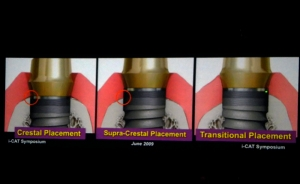 A slide from Drs. Jack Krauser and Scott Ganz's presentation shows different implant placements.