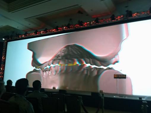 3D digital articulation